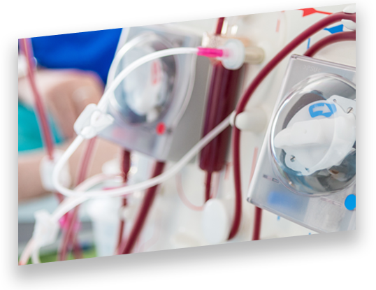 Embedded Systems in Healthcare: Blood Treatment Systems