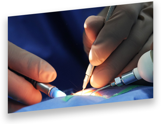 Embedded Systems in Healthcare: Cataract Removal Device